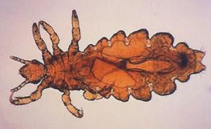 Seekers Of Lice