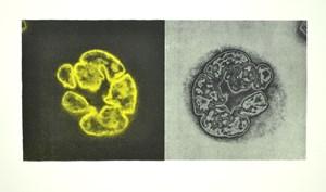 'Megakaryocyte'